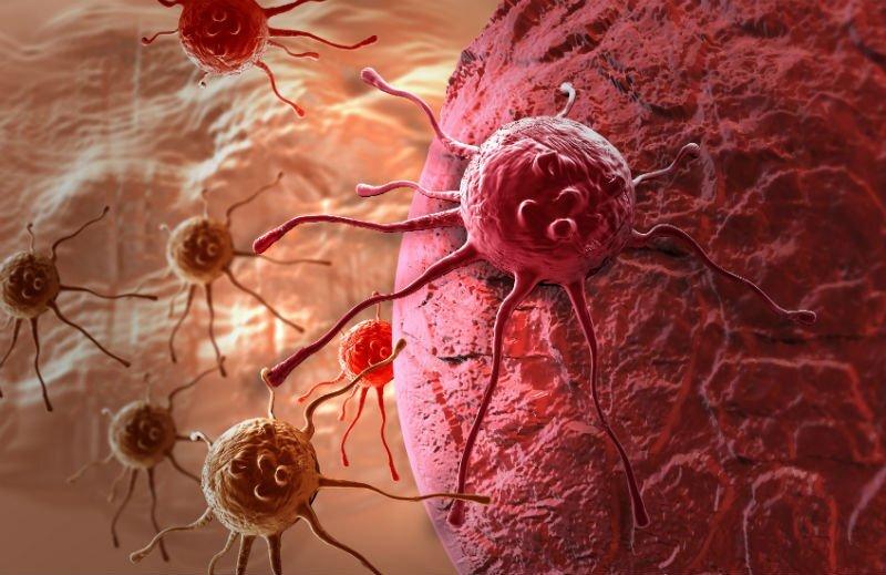 تشخیص زودهنگام سرطان پروستات با کمک یک نرمافزار مبتنی بر هوش مصنوعی