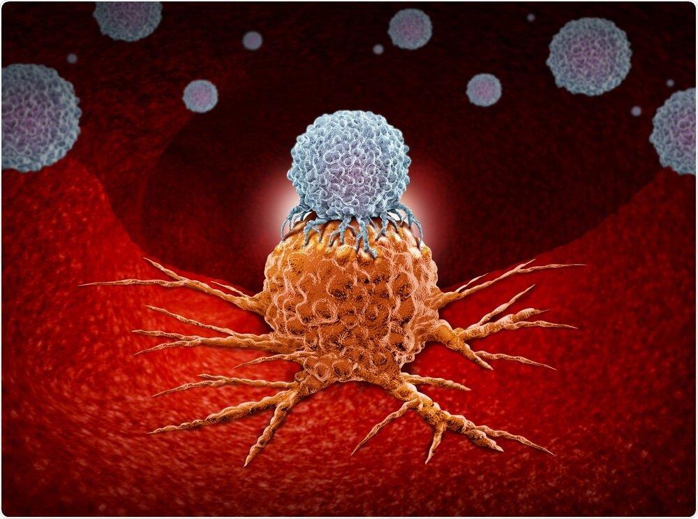 پروژه دانشمندان انگلیسی برای تشخیص سرطان و نجات بیماران